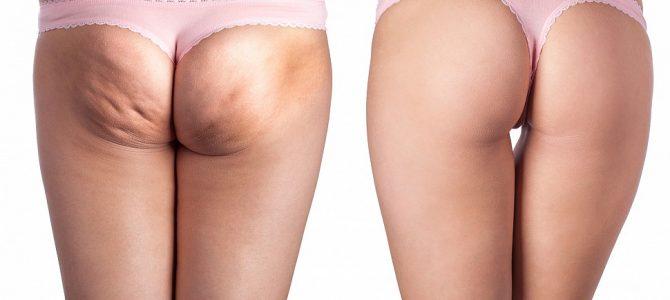 Cellulit na nogach – jak się pozbyć?